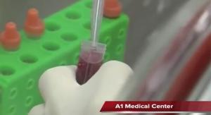 stem cells1
